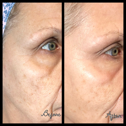 before and after carbon laser facial